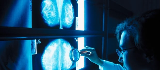 Scientists say that the findings are a significant addition to our understanding of inherited breast cancer. Photograph: Alamy